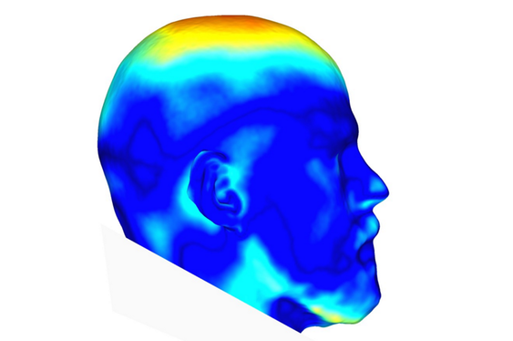 Heat map showing difference between craniums